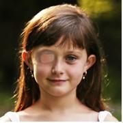 Copil cu ambliopie purtand un plasture peste ochiul sanatos