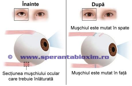 Schimbarea pozitiei globului ocular dupa operatia de strabism